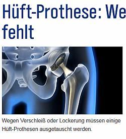 Prothese: Wenn das Ersatzteil fehlt
