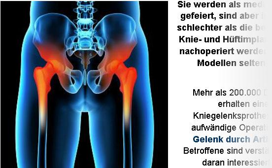 Neue Knie- und Hüftimplantate schlechter als alte